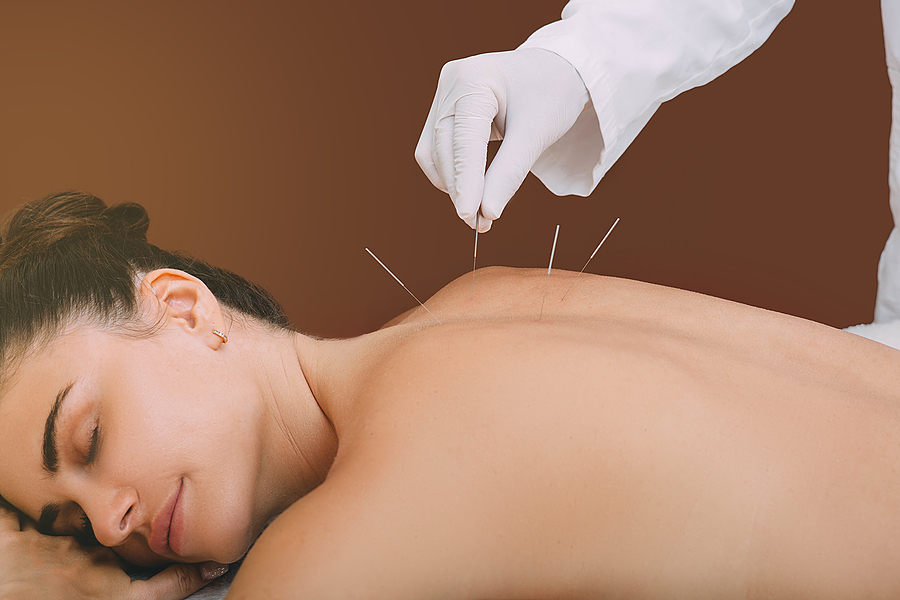 Acupuncture treatment of chronic back pain of a woman